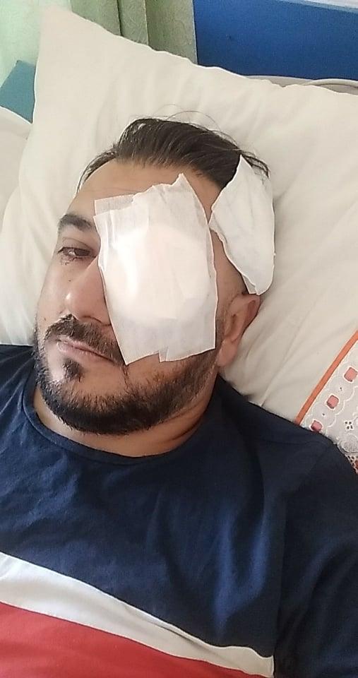Süleyman'ın ameliyatı başarılı